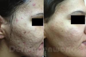 Behandling av Acne med Dermapen, microneedling