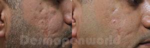 Behandling av ärr med Dermapen, microneedling