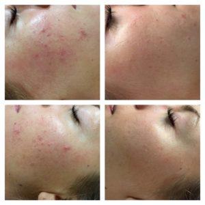Behandling med Dermapen, microneedling på område med acne